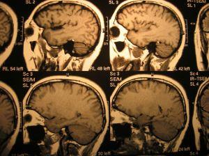 x-ray-head-666035-m